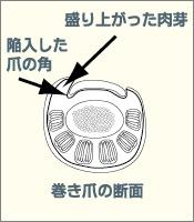 巻き爪の断面図